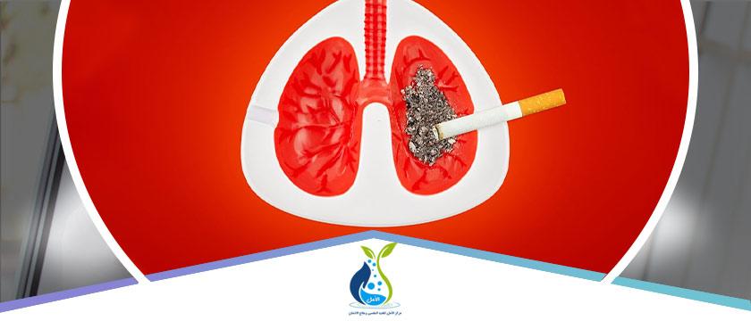 تعرف علي دليلك الكامل حول تنظيف الرئة من آثار التدخين