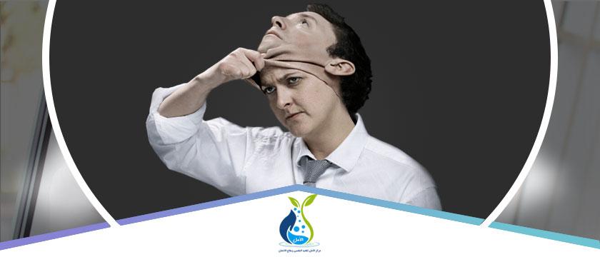 ما هي متلازمة فريجولي ؟ واسبابها واعراضها وهل لها علاج ؟